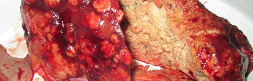 Что такое альвеококкоз печени: симптомы и лечение