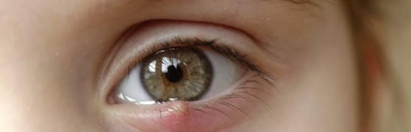 Ячмень на глазу: откуда берется и как его лечить