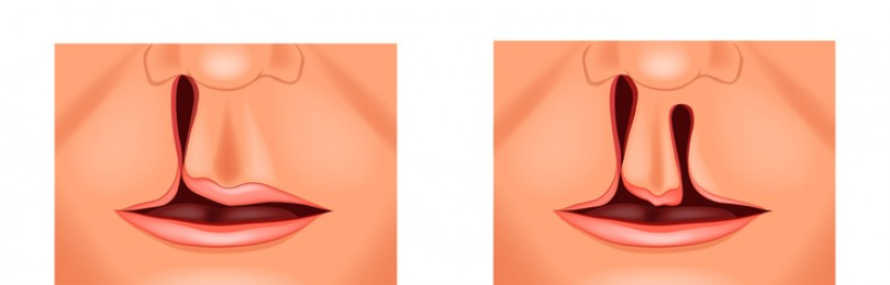Заячья губа и волчья пасть: фото детей до и после операции