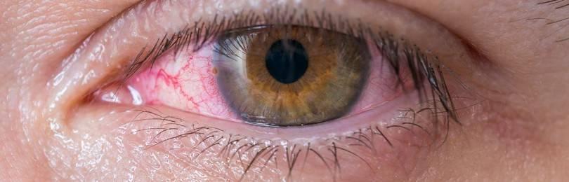 Ношение контактных линз при глаукоме