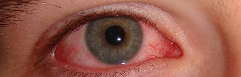 Воспаление глаза роговицы: причины, симптомы, лечение