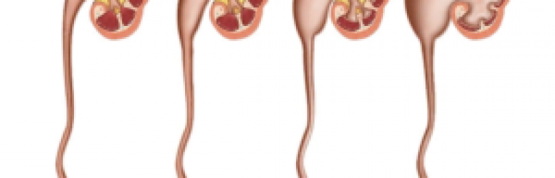 Правильное питание и диета при гидронефрозе. питание при гидронефрозе у детей