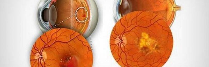 Народные средства лечения макулярной дистрофии сетчатки