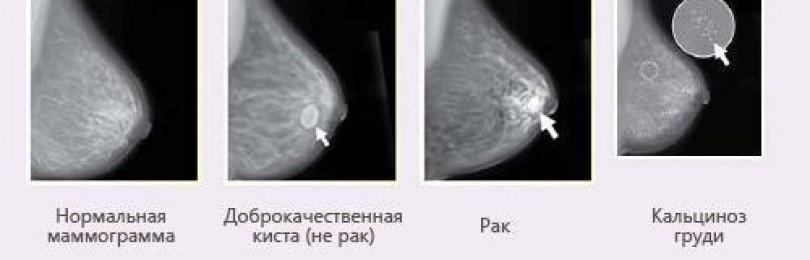 Узи или маммография- что лучше?