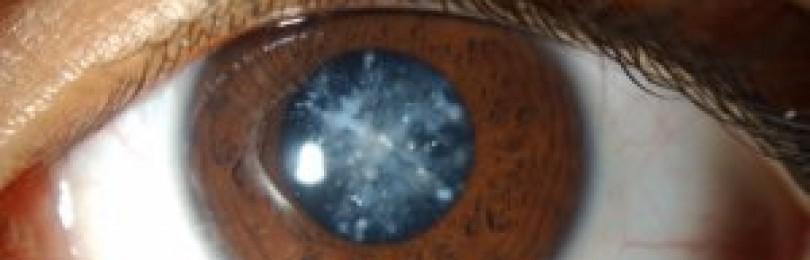 Каталин, глазные капли, 15 мл*