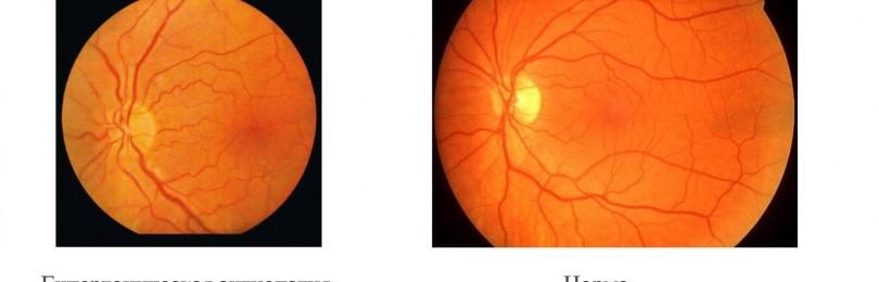 Ангиопатия сетчатки глаза — лечение, симптомы