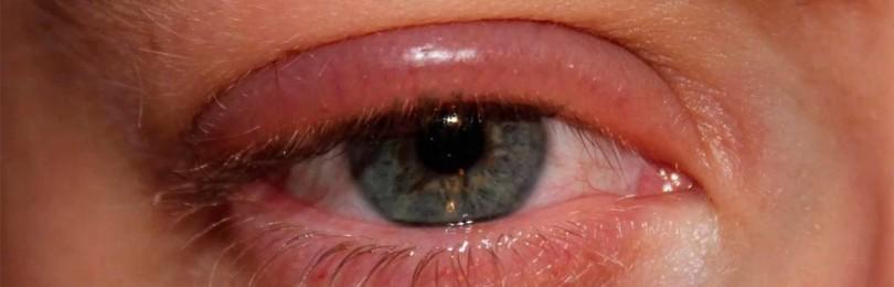 Отек глаза — причины опухших, что делать, если опухают, из-за чего может опухнуть, почему опухло веко у женщины сверху утром