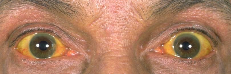 Синдром желтухи: виды заболевания и методы лечения