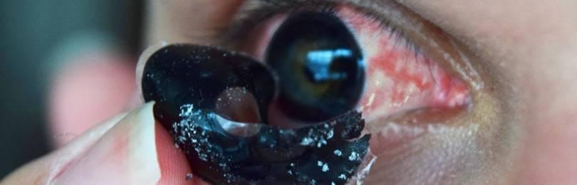 Черные склеры — линзы на весь глаз: как называются склеральные, контактные, цветные, скалярные