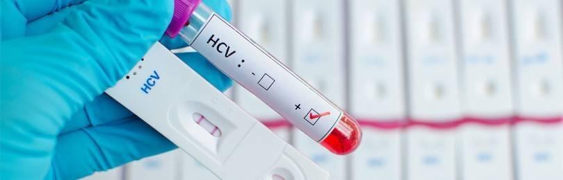 Как называется анализ крови на гепатит?