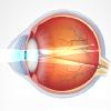 Миопический астигматизм: виды (простой, сложный), причины, лечение близорукого астигматизма обоих глаз