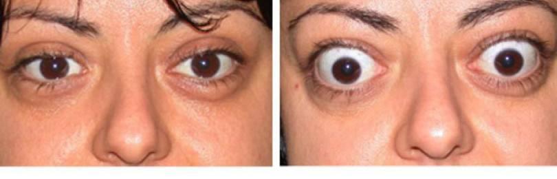 Эндокринная офтальмопатия: что это такое, степени и лечение