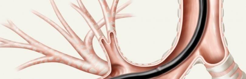 Современные тенденции и возможности микробиологической диагностики туберкулеза