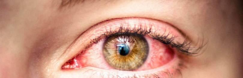 Диагностика и лечение аллергии на глазах
