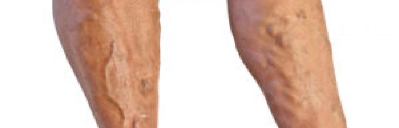 Тромбозы и тромбофлебиты вен нижних конечностей: этиология, диагностика и лечение