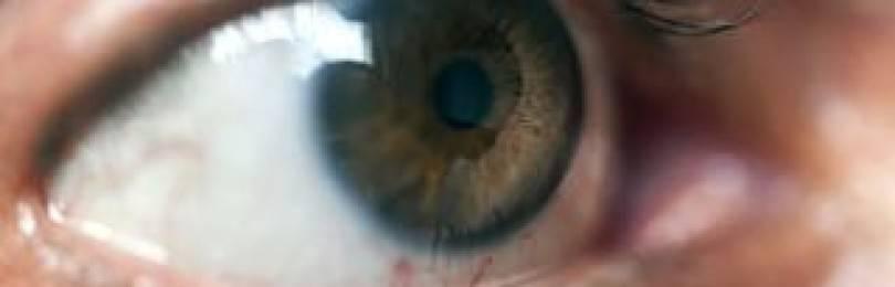 Вторичная глаукома: лечение с возможностью восстановить зрение