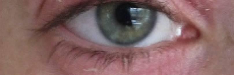 Покраснение под глазами и шелушение