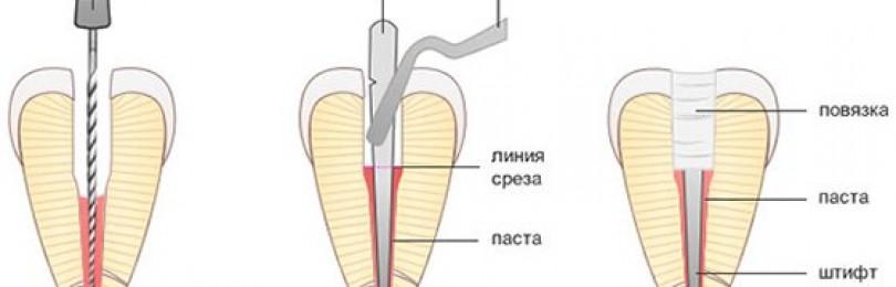 Восстановление разрушенного зуба (штифты и коронки)