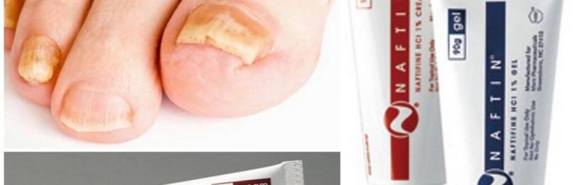 Насколько эффективен нафтифин от грибка ногтей, цена, отзывы о лечении