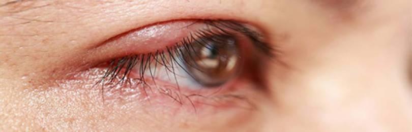 Медикаментозное лечение блефарита (препаратами)