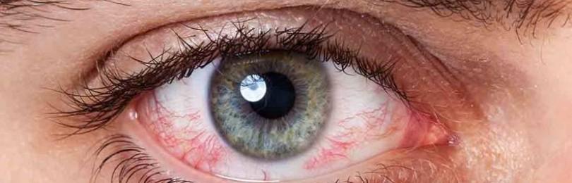 Эписклерит глаза, в том числе хронический у детей и взрослых, капли