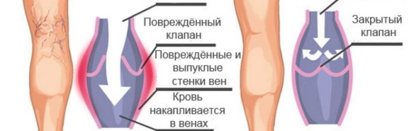 Доктор тайсс венен гель (doctor theiss venen gel) инструкция по применению