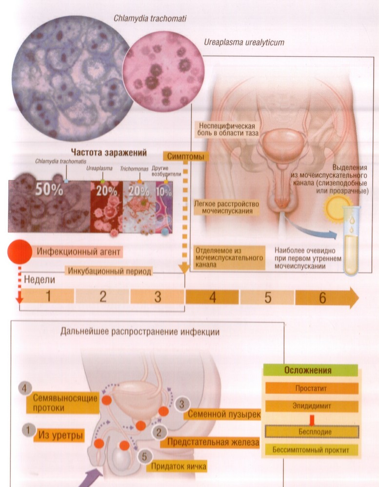 Причины выделений из уретры и их диагностика