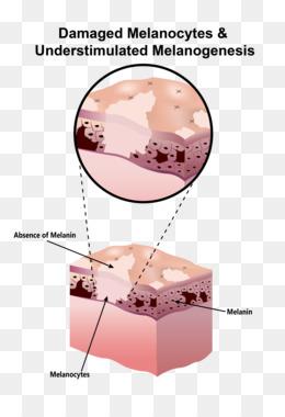 Меланоциты кожи: механизм образования, действия и функции