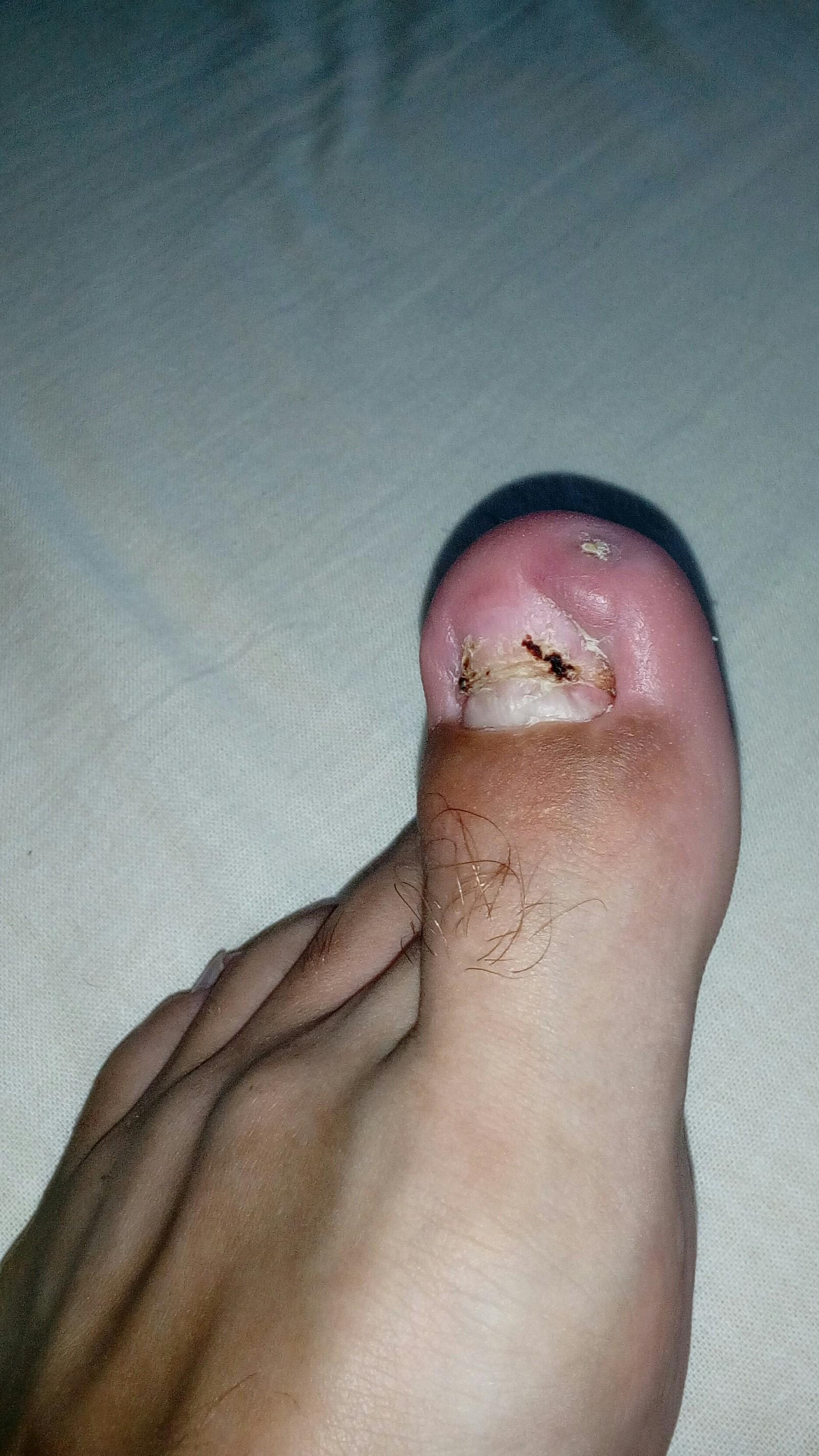 Удаление вросшего ногтя в москве. стоимость операции