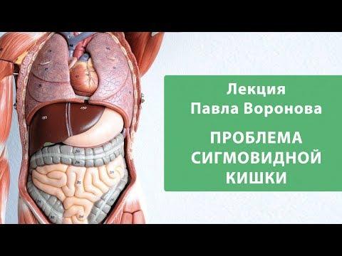 Диета при воспалении сигмовидной кишки