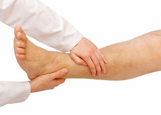 Узловатая эритема — заболевание, поражающее кожные и подкожные ткани