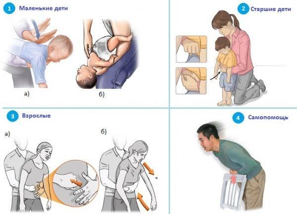 Неотложная помощь при лёгкой, средней и тяжёлой бронхиальной астме у детей