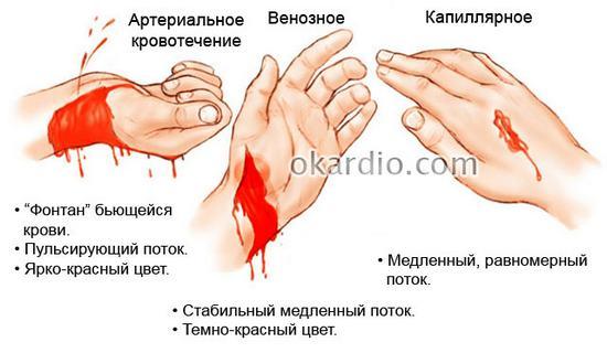Кровотечение - как оказать помощь? классификация, виды, наружное, внутреннее, артериальное, венозное, капиллярное, симптомы и признаки, способы остановки кровотечения, оказание первой помощи. жгут при кровотечении.  :: polismed.com