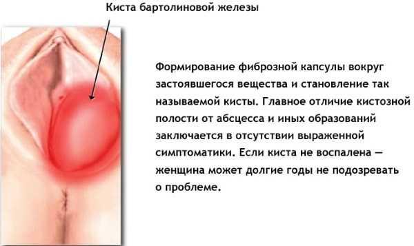 Абсцесс бартолиновой железы