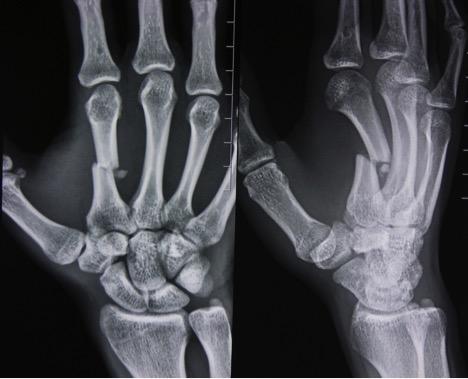 Перелом головки лучевой кости локтевого сустава — причины, симптомы и лечение