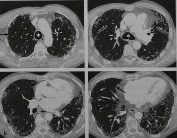 Причины, симптомы, осложнения и лечение альвеолита лёгких
