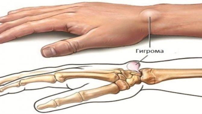 Твёрдые шишки под кожей: причины, фото, какие заболевания, симптомы, нужно ли обращаться к врачу, может ли быть рак
