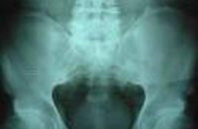 Как лечить анкилозирующий спондилит?