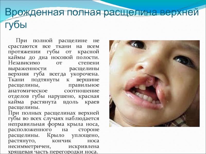 Волчья пасть. причины, симптомы, пластическая операция и реабилитация :: polismed.com