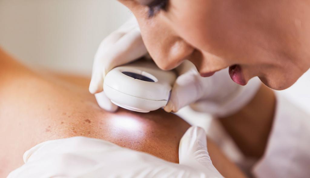 Рожистое воспаление на лице: методы лечения