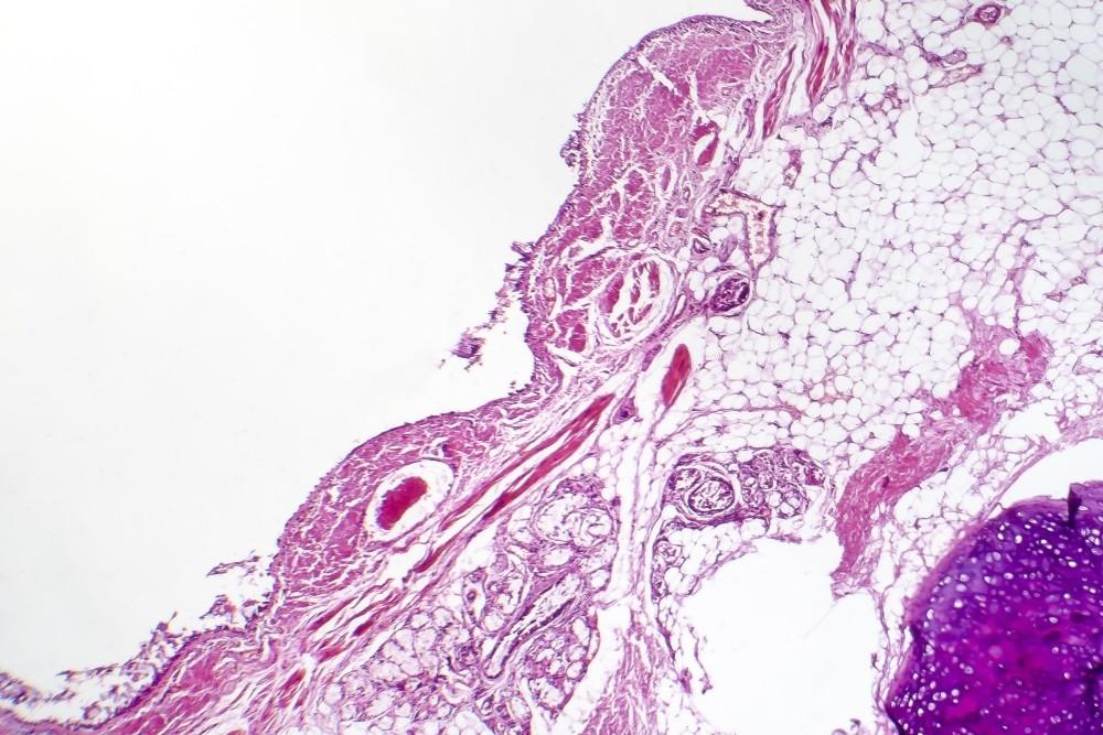 Методы лечения бронхита при бронхиальной астме