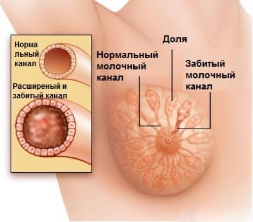 Победим лактостаз. лечение лактостаза и мастита у кормящей мамы