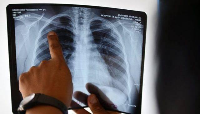 Туберкулез на компьютерной томографии: варианты и их проявления
