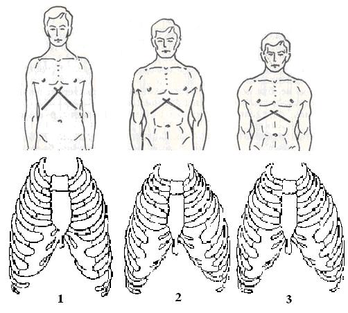 Килевидная грудная клетка: причины заболевания, основные симптомы, лечение и профилактика