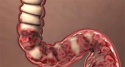 Эрозивный колит кишечника