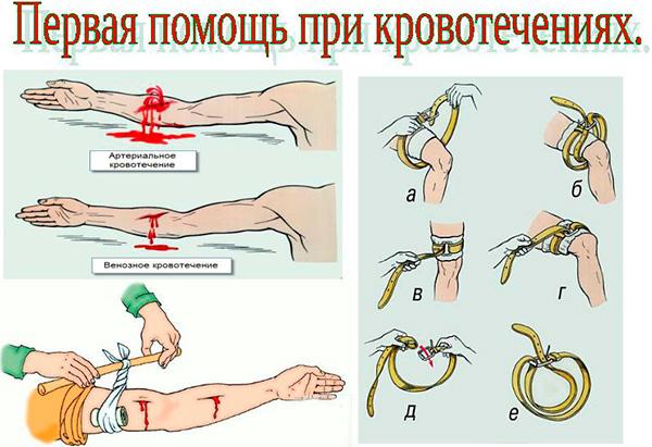 Первая помощь при кровотечениях. виды кровотечений и способы остановки. помощь при венозном, артериальном и капилярном кровотечении