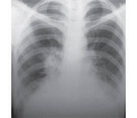 Может ли пневмония перейти в туберкулез?