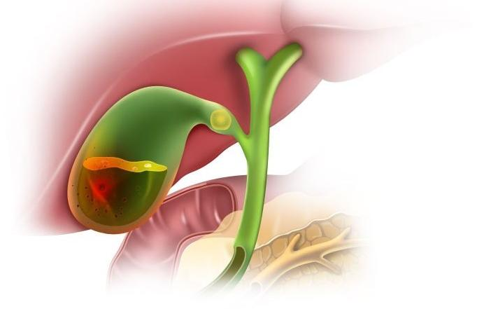 Симптомы и принципы лечения воспаления желчного пузыря