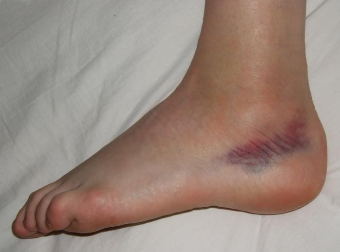 Лечение гематомы на ноге после ушиба: мази, народные средства, лекарства от ушибов, синяков и отеков