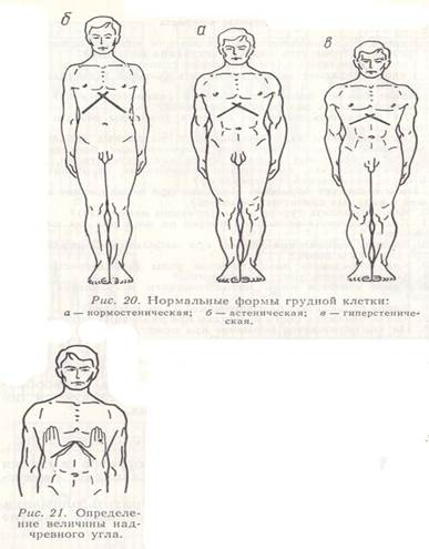 Причины и лечение деформации грудной клетки у детей